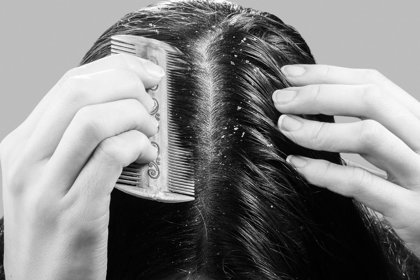 Clarifying Shampoos: Why Your Hair And Scalp Need A Detox